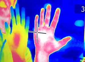 A thermogram comparing a cold hand and a warm hand